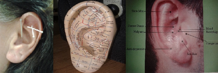 oor acupunctuur